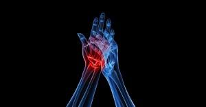 Arthritis Joint Pain