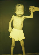 Malnourished Child