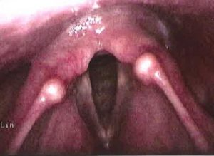 Figure 2. Larynx after reflux treatment
