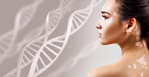 Enfermedades autoinmunes: un enfoque de 4 pasos fundamentado en la alimentación basada en plantas sin procesar