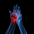 arthritis-joint-pain